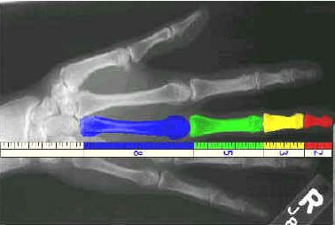 Phi ratio in bones of the hand